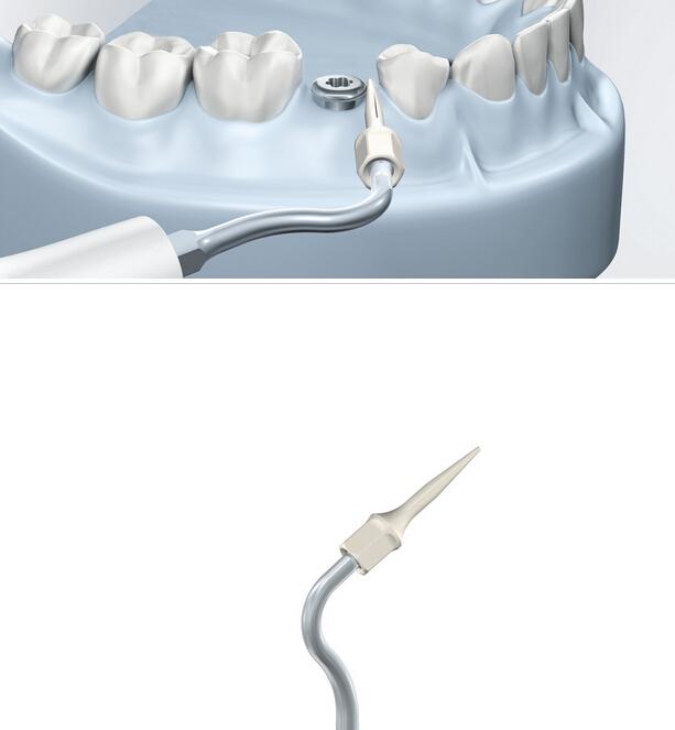 Les inserts de parodontologie
